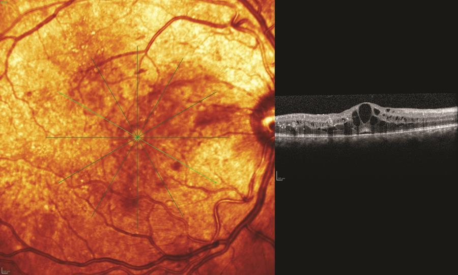 cystoid-macular-edema-aa0_54543