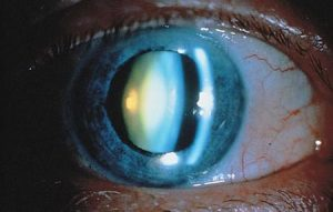 Types Of Cataracts The Cataract Course