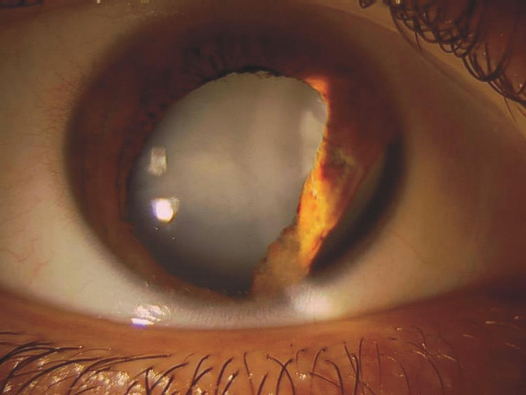 traumatic-cataract-aa0_53313